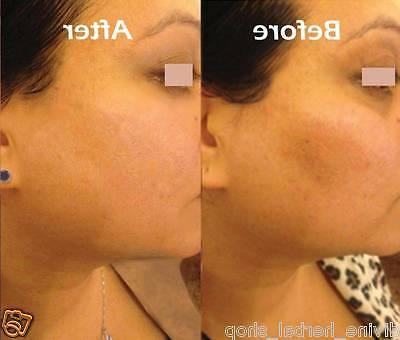 Divine Herbal Facial Treatment Serum - Anti ageing fine line