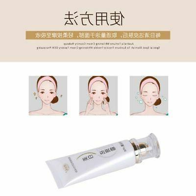 Facial Brighten Care Remove Freckle Cream